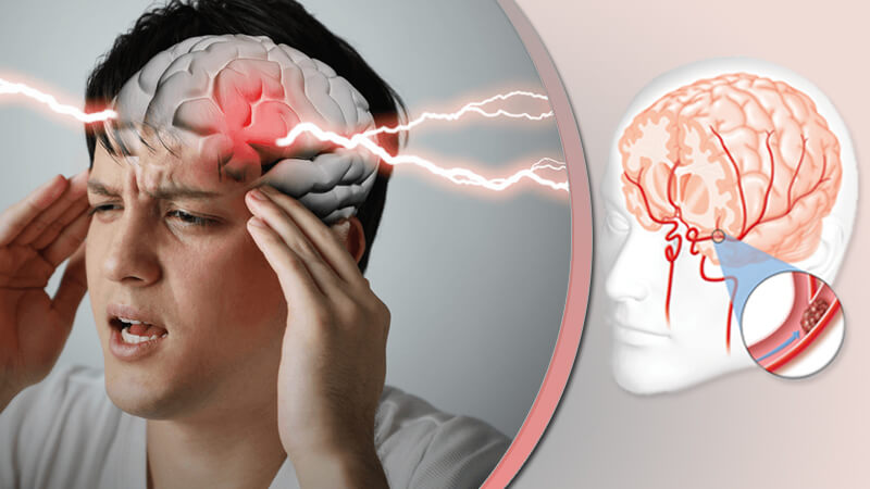 5 راه ساده برای پیشگیری از سکته مغزی